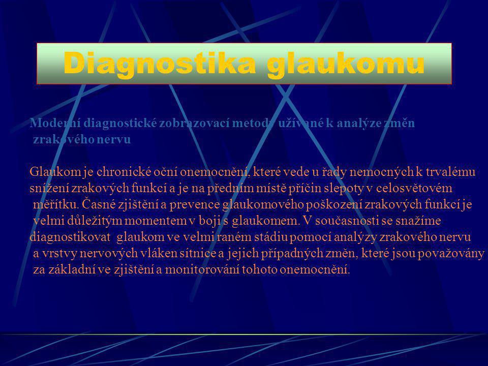 Diagnostika glaukomu Moderní diagnostické zobrazovací metody užívané k analýze změn zrakového nervu Glaukom je chronické oční onemocnění, které vede u