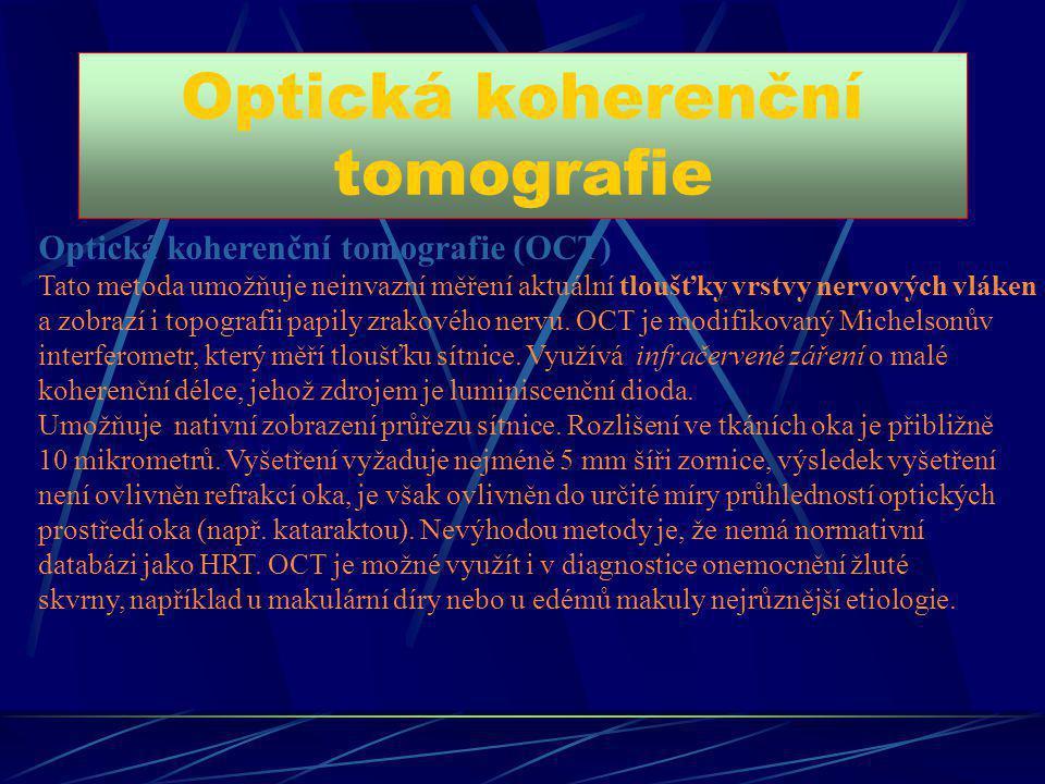 Optická koherenční tomografie Optická koherenční tomografie (OCT) Tato metoda umožňuje neinvazní měření aktuální tloušťky vrstvy nervových vláken a zo