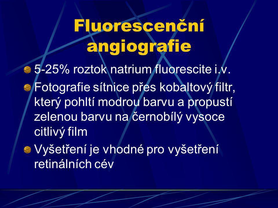 Fluorescenční angiografie 5-25% roztok natrium fluorescite i.v. Fotografie sítnice přes kobaltový filtr, který pohltí modrou barvu a propustí zelenou