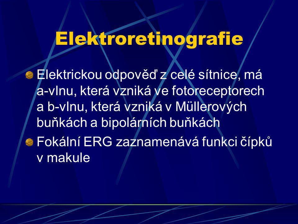 Elektroretinografie Elektrickou odpověď z celé sítnice, má a-vlnu, která vzniká ve fotoreceptorech a b-vlnu, která vzniká v Müllerových buňkách a bipo