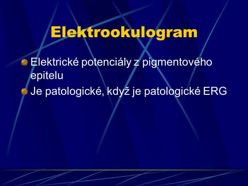 Elektrookulogram Elektrické potenciály z pigmentového epitelu Je patologické, když je patologické ERG