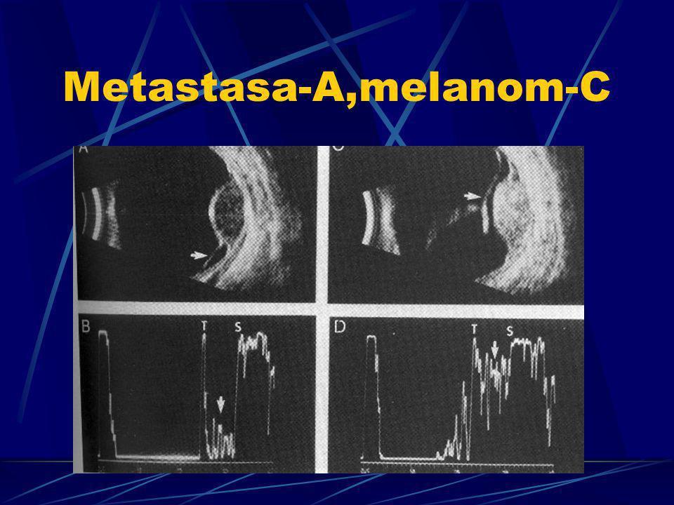 Metastasa-A,melanom-C