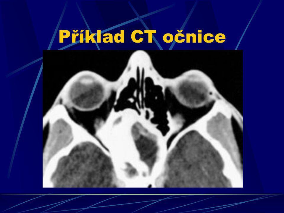 Příklad CT očnice