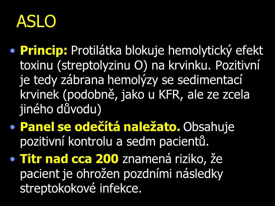 ASLO Princip: Protilátka blokuje hemolytický efekt toxinu (streptolyzinu O) na krvinku. Pozitivní je tedy zábrana hemolýzy se sedimentací krvinek (pod