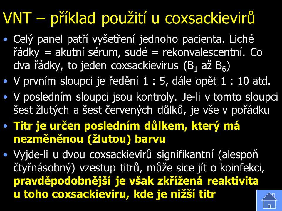 VNT – příklad použití u coxsackievirů Celý panel patří vyšetření jednoho pacienta. Liché řádky = akutní sérum, sudé = rekonvalescentní. Co dva řádky,