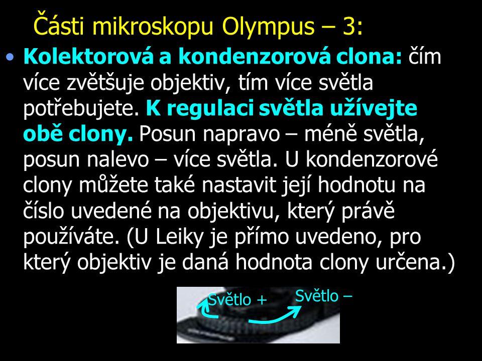 Části mikroskopu Olympus – 3: Kolektorová a kondenzorová clona: čím více zvětšuje objektiv, tím více světla potřebujete. K regulaci světla užívejte ob