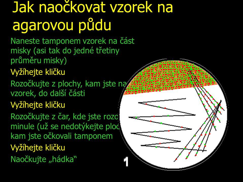 Jak naočkovat vzorek na agarovou půdu Naneste tamponem vzorek na část misky (asi tak do jedné třetiny průměru misky) Vyžíhejte kličku Rozočkujte z plo