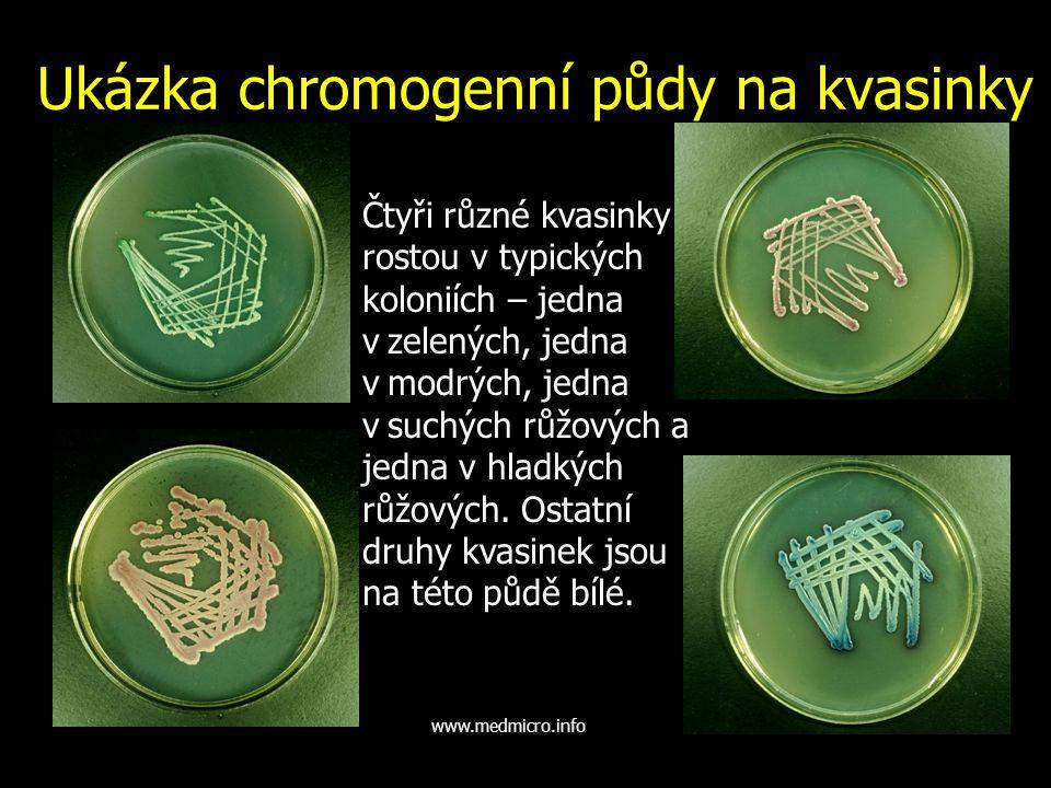 Ukázka chromogenní půdy na kvasinky Čtyři různé kvasinky rostou v typických koloniích – jedna v.zelených, jedna v.modrých, jedna v.suchých růžových a