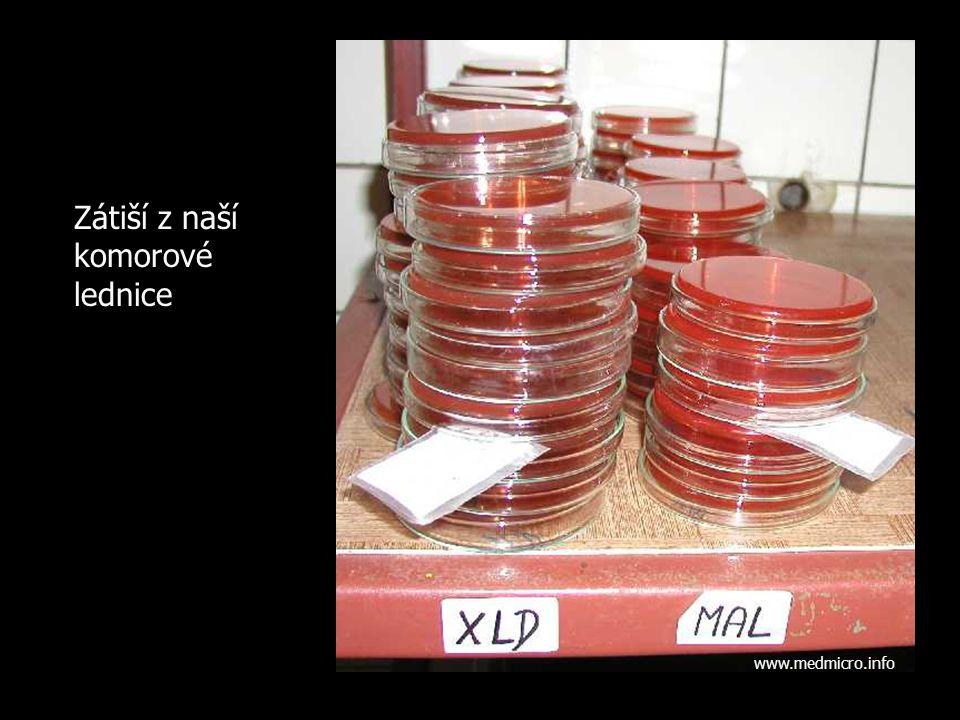 Zátiší z naší komorové lednice www.medmicro.info