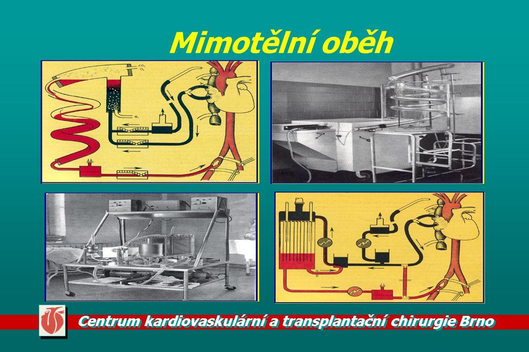 Centrum kardiovaskulární a transplantační chirurgie Brno Mimotělní oběh