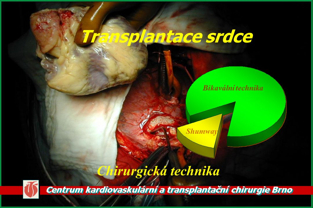 Centrum kardiovaskulární a transplantační chirurgie Brno Transplantace srdce Chirurgická technika Bikavální technika Shumway