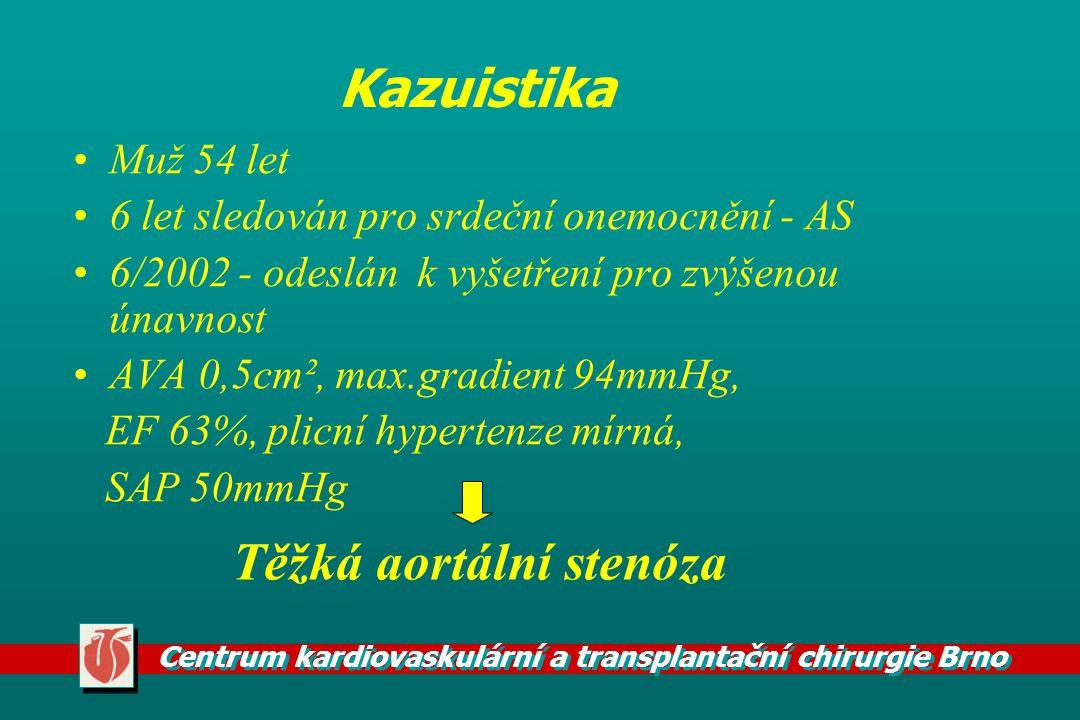 Centrum kardiovaskulární a transplantační chirurgie Brno Kazuistika Muž 54 let 6 let sledován pro srdeční onemocnění - AS 6/2002 - odeslán k vyšetření