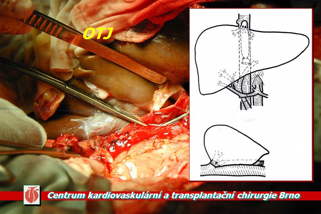 Centrum kardiovaskulární a transplantační chirurgie Brno OTJ