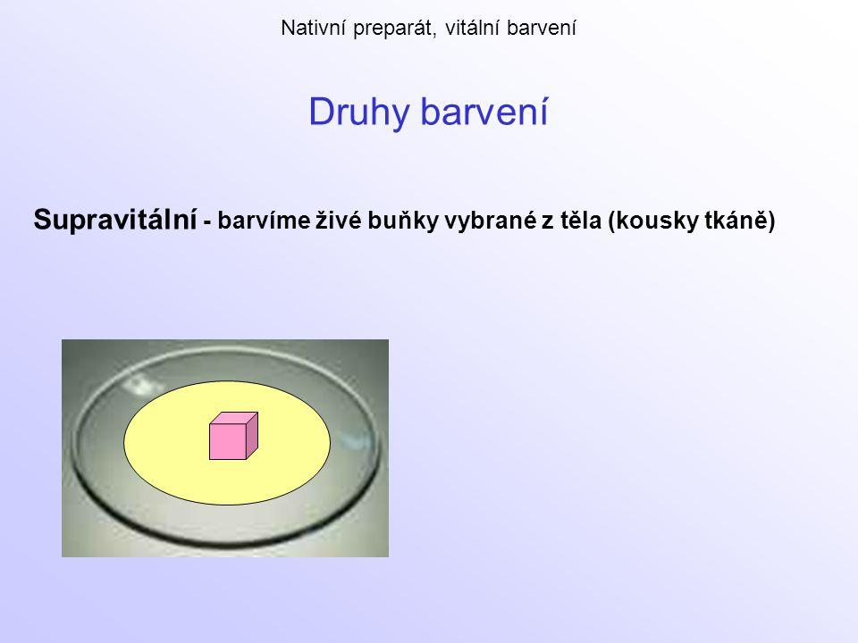 Druhy barvení Supravitální - barvíme živé buňky vybrané z těla (kousky tkáně) Nativní preparát, vitální barvení