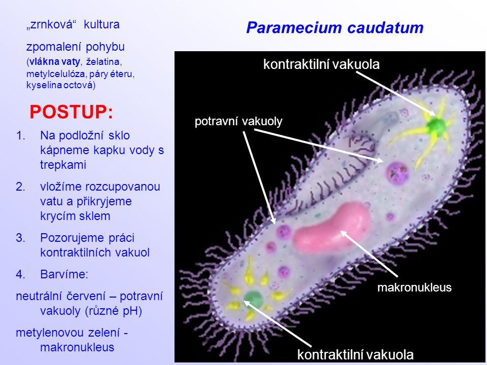"""kontraktilní vakuola makronukleus kontraktilní vakuola potravní vakuoly Paramecium caudatum """"zrnková"""" kultura zpomalení pohybu (vlákna vaty, želatina,"""