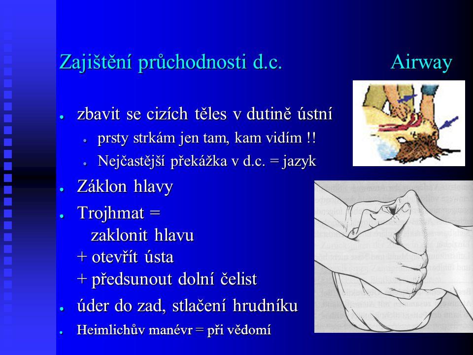 Zajištění průchodnosti d.c.Airway ● zbavit se cizích těles v dutině ústní ● prsty strkám jen tam, kam vidím !.