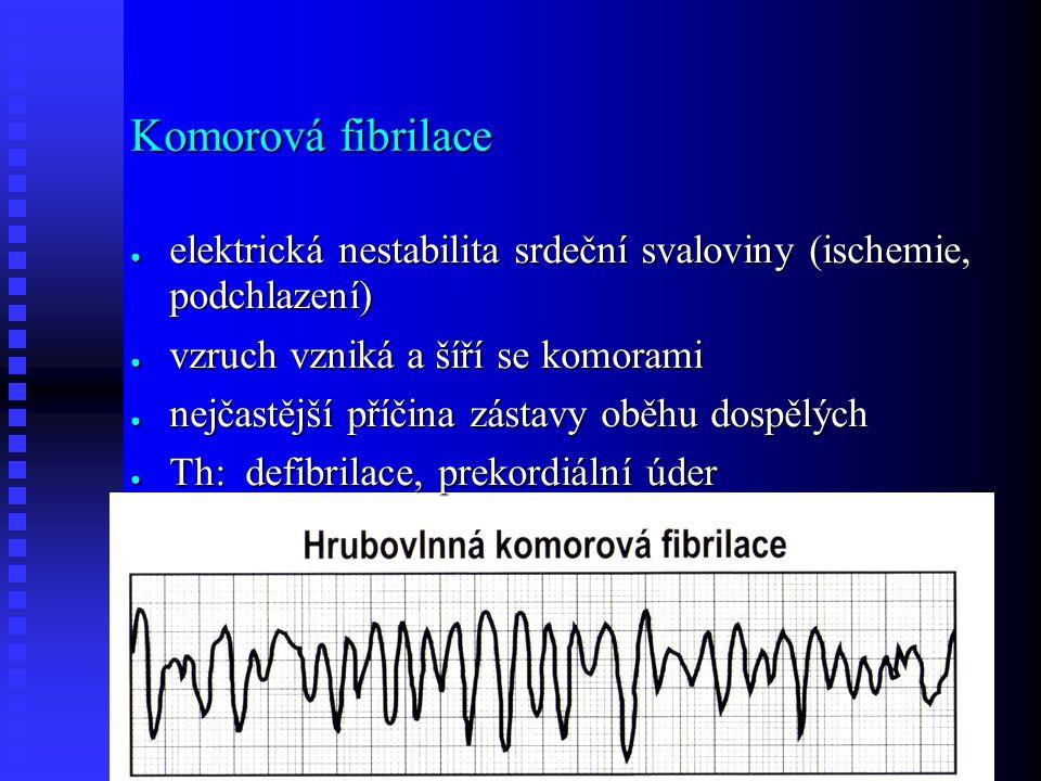 Komorová fibrilace ● elektrická nestabilita srdeční svaloviny (ischemie, podchlazení) ● vzruch vzniká a šíří se komorami ● nejčastější příčina zástavy oběhu dospělých ● Th: defibrilace, prekordiální úder