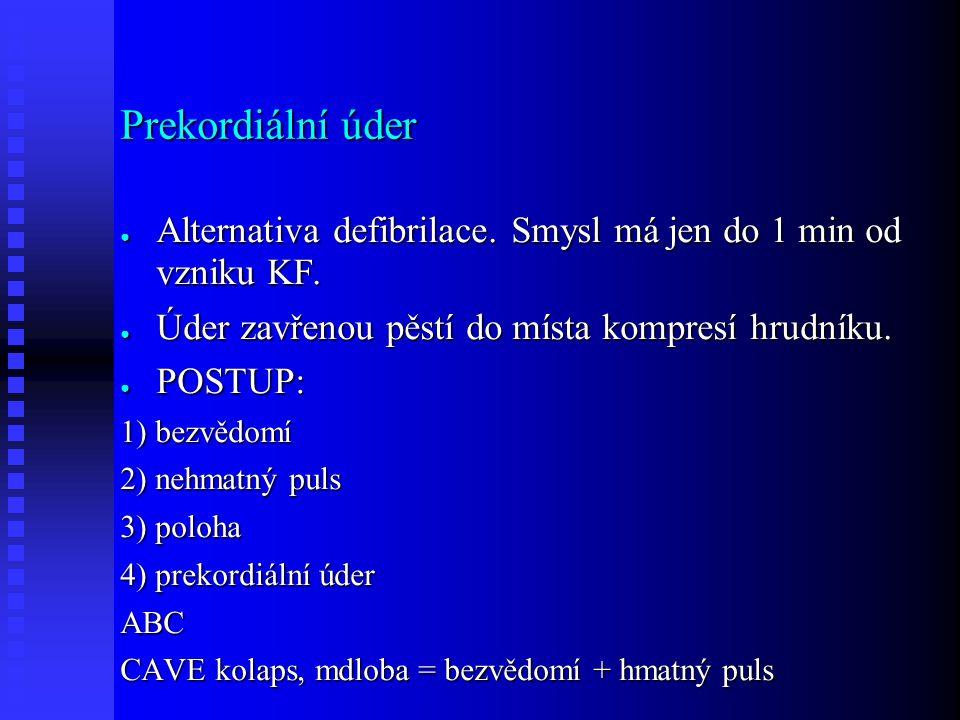 Prekordiální úder ● Alternativa defibrilace. Smysl má jen do 1 min od vzniku KF.