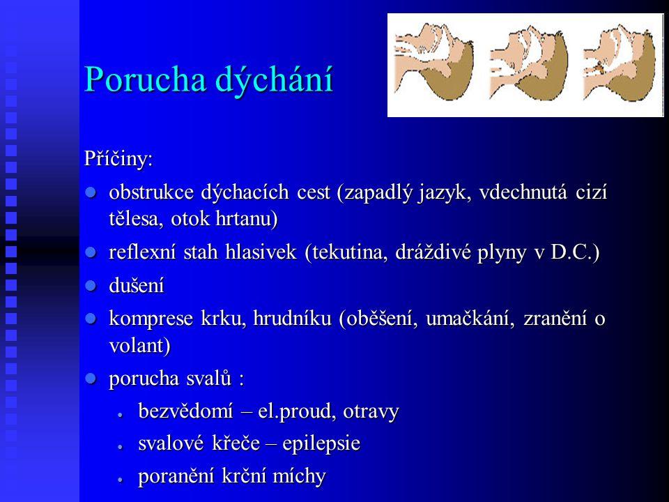 Porucha dýchání Příčiny: obstrukce dýchacích cest (zapadlý jazyk, vdechnutá cizí tělesa, otok hrtanu) obstrukce dýchacích cest (zapadlý jazyk, vdechnutá cizí tělesa, otok hrtanu) reflexní stah hlasivek (tekutina, dráždivé plyny v D.C.) reflexní stah hlasivek (tekutina, dráždivé plyny v D.C.) dušení dušení komprese krku, hrudníku (oběšení, umačkání, zranění o volant) komprese krku, hrudníku (oběšení, umačkání, zranění o volant) porucha svalů : porucha svalů : ● bezvědomí – el.proud, otravy ● svalové křeče – epilepsie ● poranění krční míchy