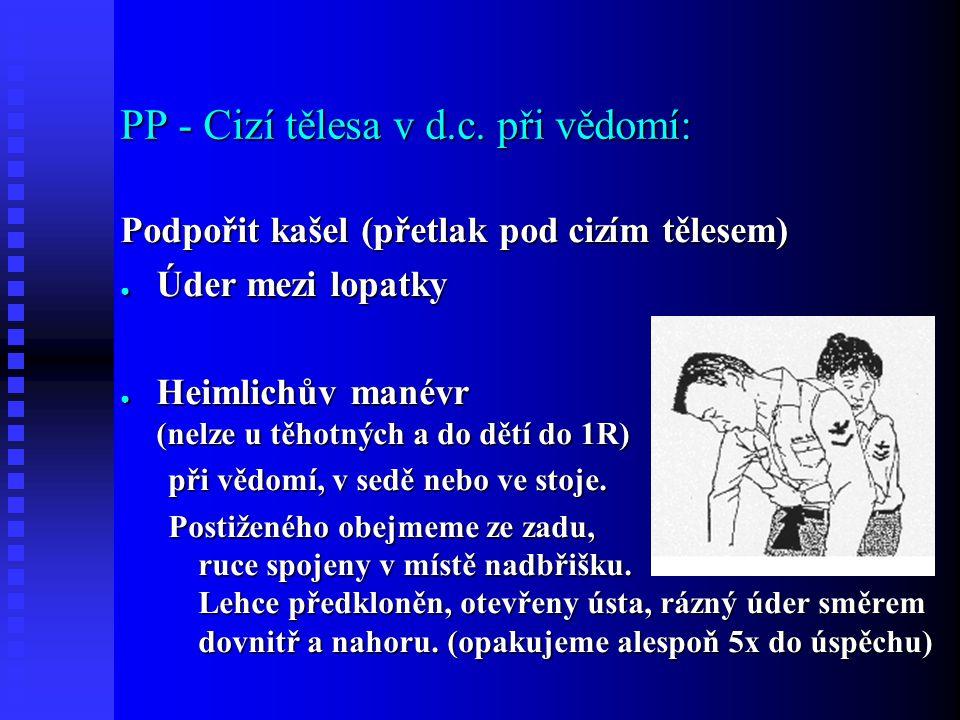PP - Cizí tělesa v d.c.