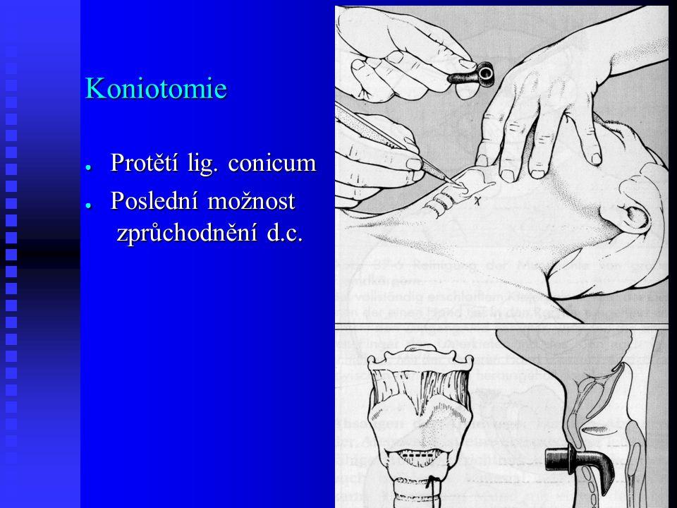 Koniotomie ● Protětí lig. conicum ● Poslední možnost zprůchodnění d.c.