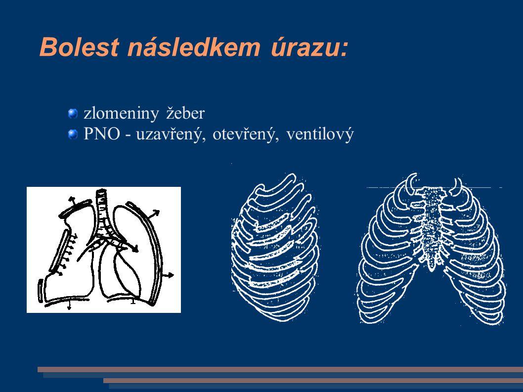 Bolest následkem úrazu: zlomeniny žeber PNO - uzavřený, otevřený, ventilový