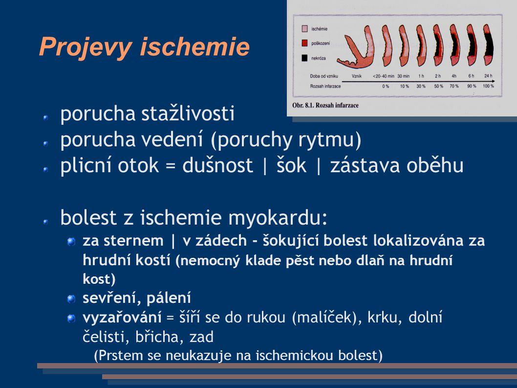 Projevy ischemie porucha stažlivosti porucha vedení (poruchy rytmu) plicní otok = dušnost | šok | zástava oběhu bolest z ischemie myokardu: za sternem | v zádech - šokující bolest lokalizována za hrudní kostí (nemocný klade pěst nebo dlaň na hrudní kost) sevření, pálení vyzařování = šíří se do rukou (malíček), krku, dolní čelisti, břicha, zad (Prstem se neukazuje na ischemickou bolest)