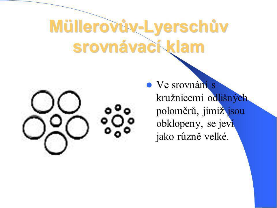 Müllerovův-Lyerschův srovnávací klam Ve srovnání s kružnicemi odlišných poloměrů, jimiž jsou obklopeny, se jeví jako různě velké.