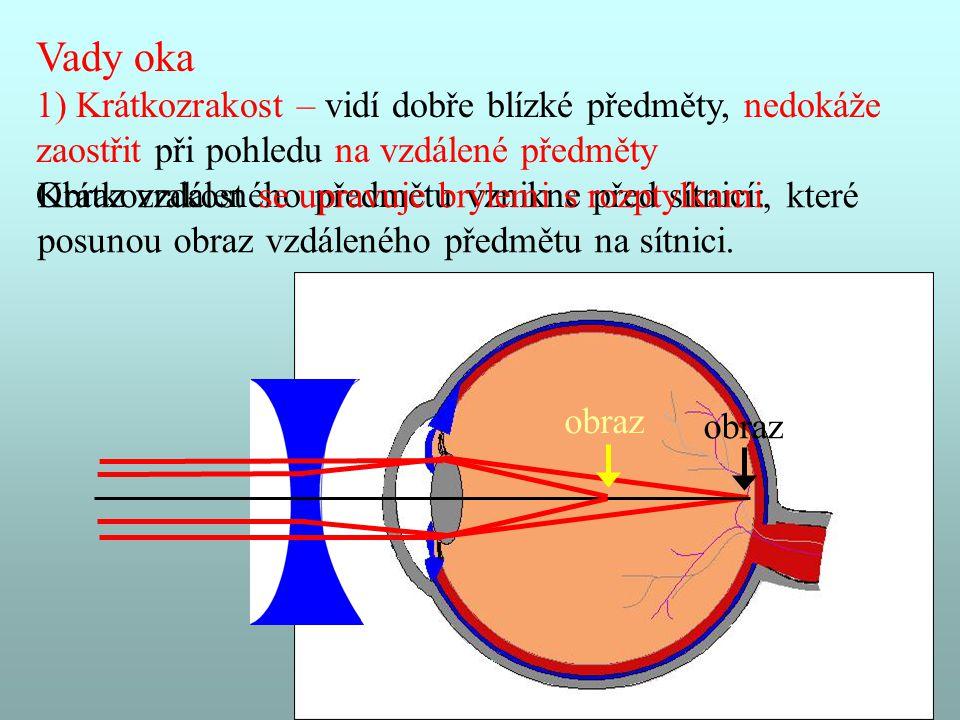 Sestavil Mgr.Vladimír Žůrek 5 Vady oka 1) Krátkozrakost – vidí dobře blízké předměty, nedokáže zaostřit při pohledu na vzdálené předměty Obraz vzdálen