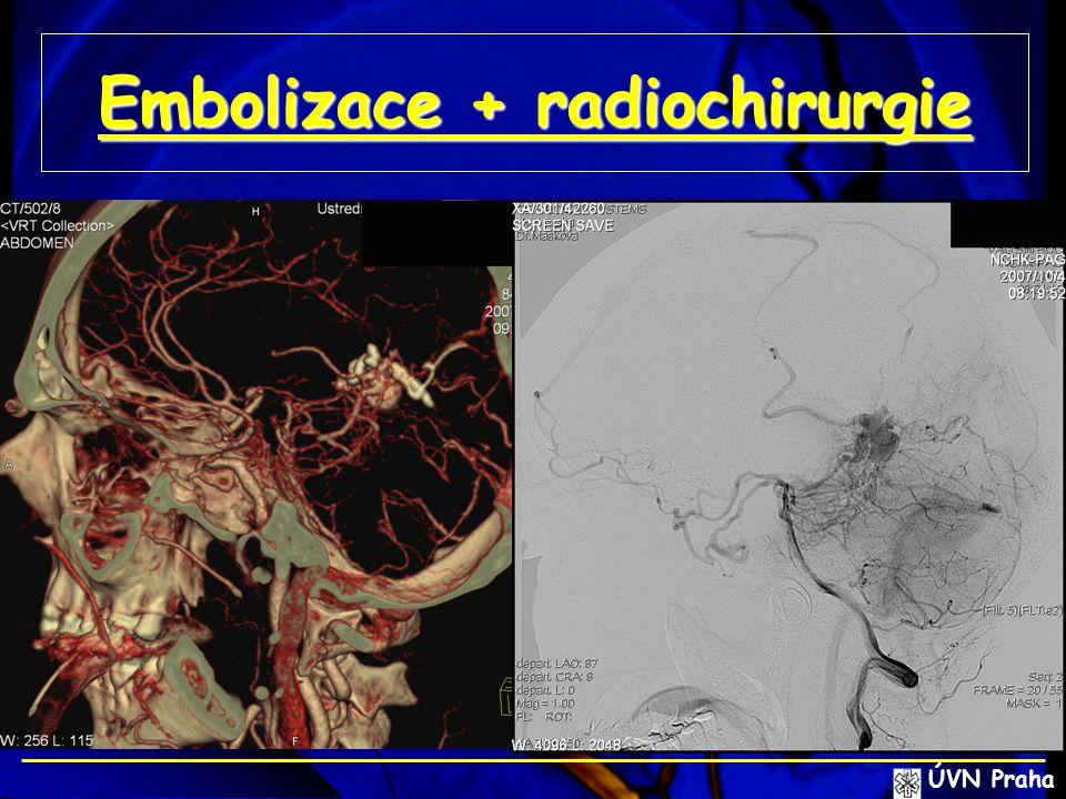 Embolizace + radiochirurgie ÚVN Praha