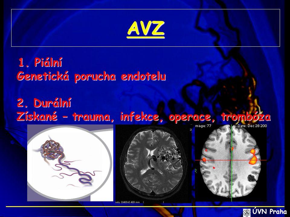 AVZ 1. Piální 1. Piální Genetická porucha endotelu 2. Durální Získané – trauma, infekce, operace, trombóza ÚVN Praha