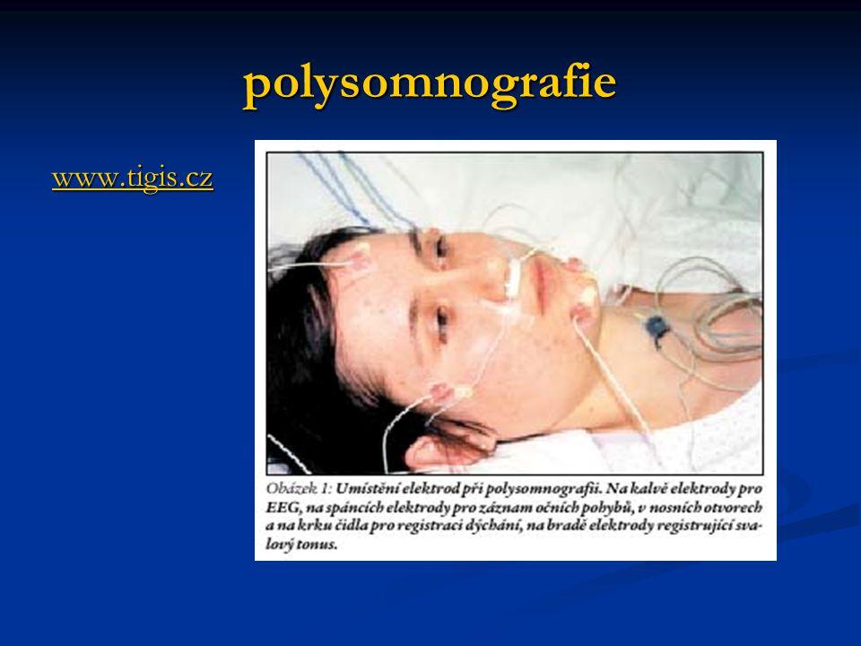 polysomnografie www.tigis.cz