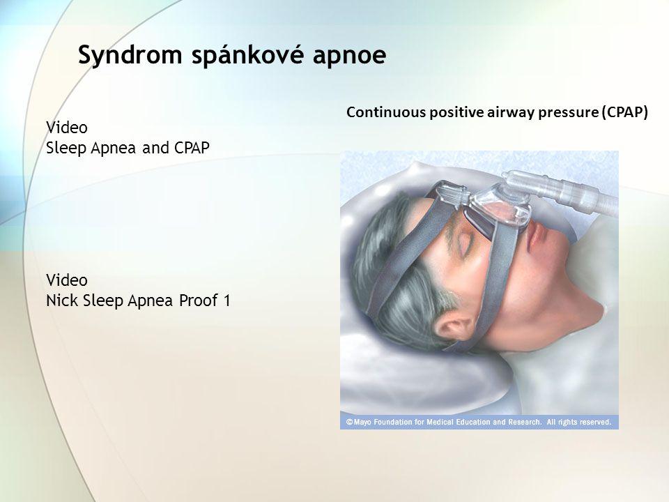 Syndrom spánkové apnoe Video Sleep Apnea and CPAP Video Nick Sleep Apnea Proof 1 Continuous positive airway pressure (CPAP)