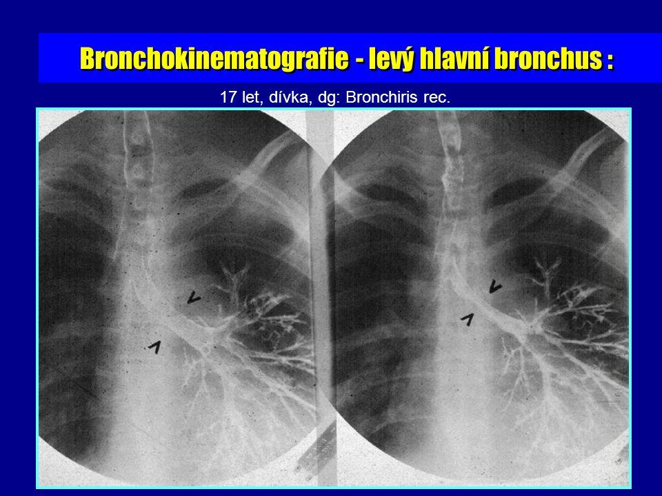 17 let, dívka, dg: Bronchiris rec. Bronchokinematografie - levý hlavní bronchus :