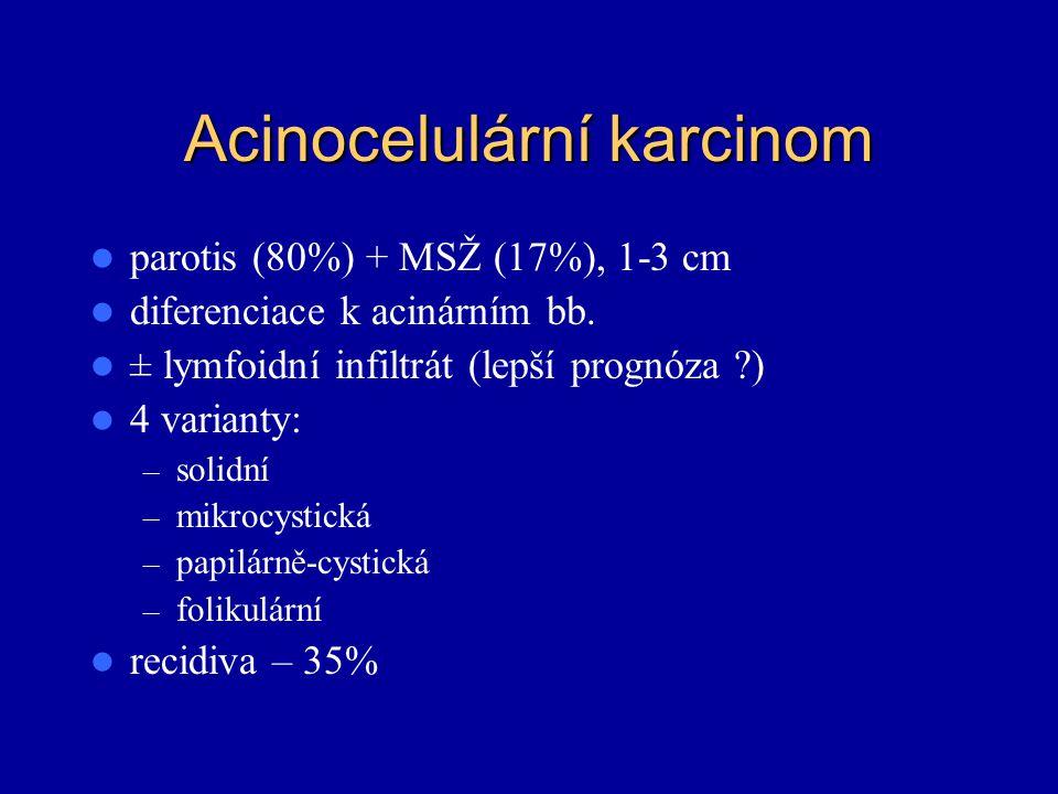 Acinocelulární karcinom parotis (80%) + MSŽ (17%), 1-3 cm diferenciace k acinárním bb. ± lymfoidní infiltrát (lepší prognóza ?) 4 varianty: – solidní