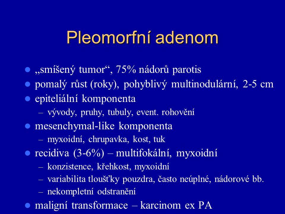 "Pleomorfní adenom ""smíšený tumor"", 75% nádorů parotis pomalý růst (roky), pohyblivý multinodulární, 2-5 cm epiteliální komponenta – vývody, pruhy, tub"