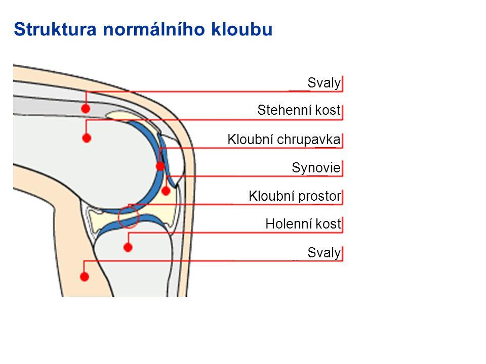 Struktura normálního kloubu Svaly Stehenní kost Kloubní chrupavka Synovie Kloubní prostor Holenní kost Svaly