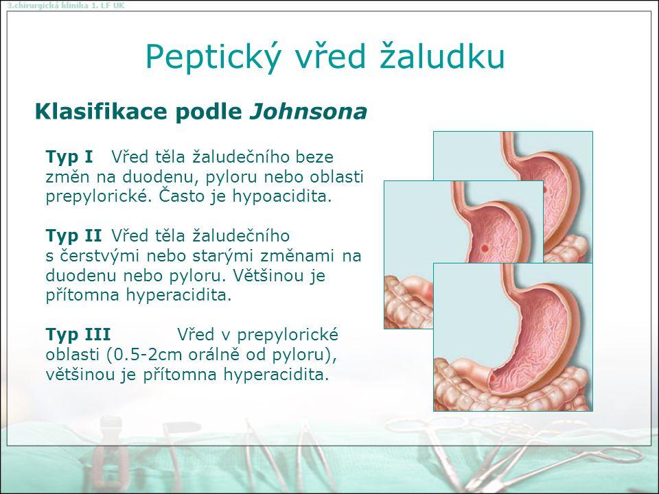 """Konzervativní terapie abstinence nikotinu žádná speciální """"vředová dieta vysadit ulcerogenní preparáty Primární terapie akutní vřed žaludku nebo duodena o H2 blokátory (Ranisan, Ulcosan) po dobu 6-12 týdnů o inhibitory protonové pumpy (Omeprazol - LOSEC, ANTRA) o slizniční protektiva Sucralfat (VENTER) o při průkazu Helicobacter pylori +TRITEC (vizmutové sole) o při perzistující infekci kombinovaná terapie Metronidazol, Amoxicilin, TRITEC"""