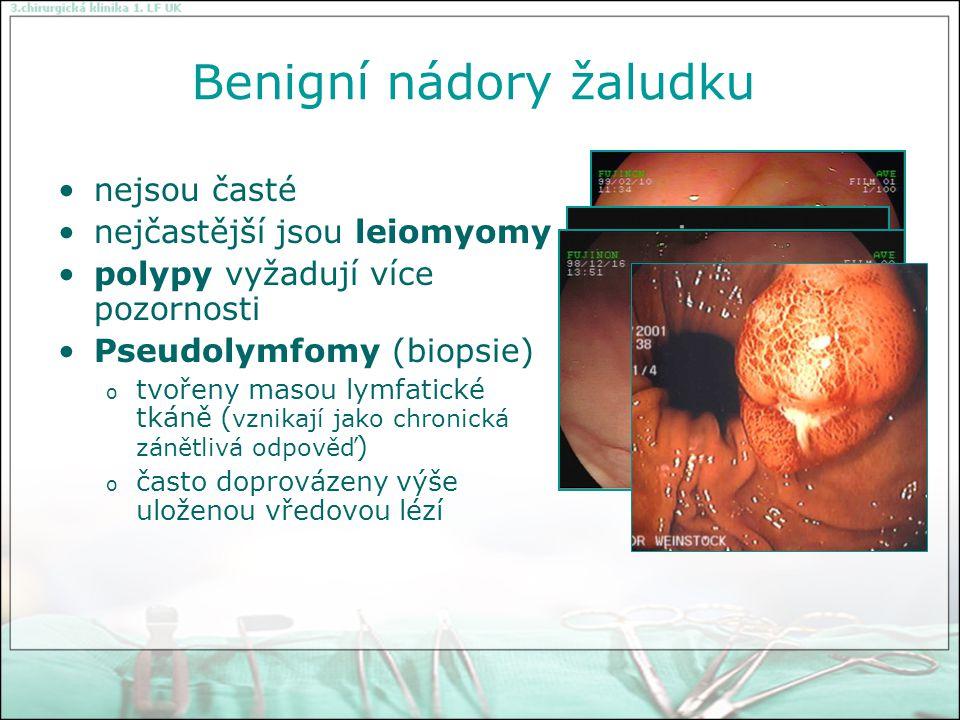 Maligní nádory žaludku karcinom žaludku (95%) lymfom (2-3%) leiomyosarkom (1-2%).