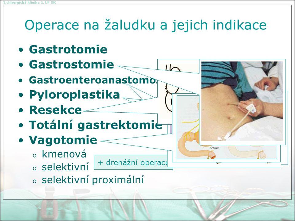 Operace na žaludku
