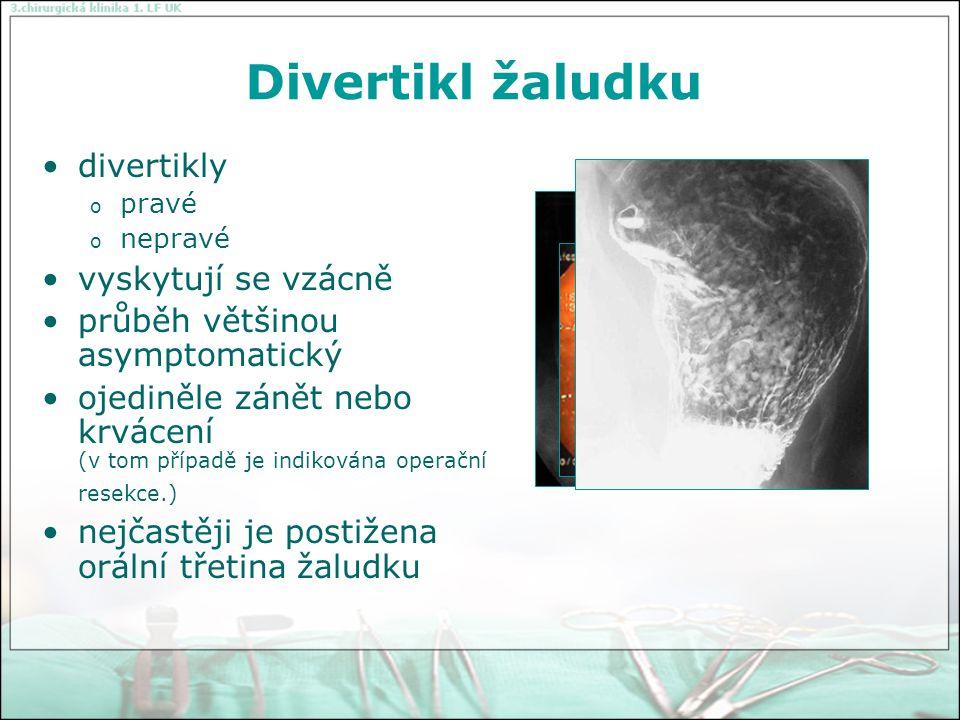 Peptický vřed žaludku a duodena nejčastější a nejdůležitější onemocněním žaludku a duodena vážné problémy zdravotnické a ekonomické duodenální vřed - nadměrným množstvím kyseliny solné a pepsinu žaludeční vředy - nedostatečností obranných mechanizmů žaludeční sliznice v obou případech je nezbytná přítomnost Helicobacter pylori Řízení žaludeční sekrece nervovou regulací (cefalická fáze), která je vyvolána zrakem, čichem a kousáním potravy, podněty jsou vedeny vagem, regulací humorální (žaludeční fáze), při které potrava v žaludku vyvolá uvolnění gastrinu ze sliznice žaludečního antra a intestinální fázi, která má především význam pro zastavení žaludeční sekrece.