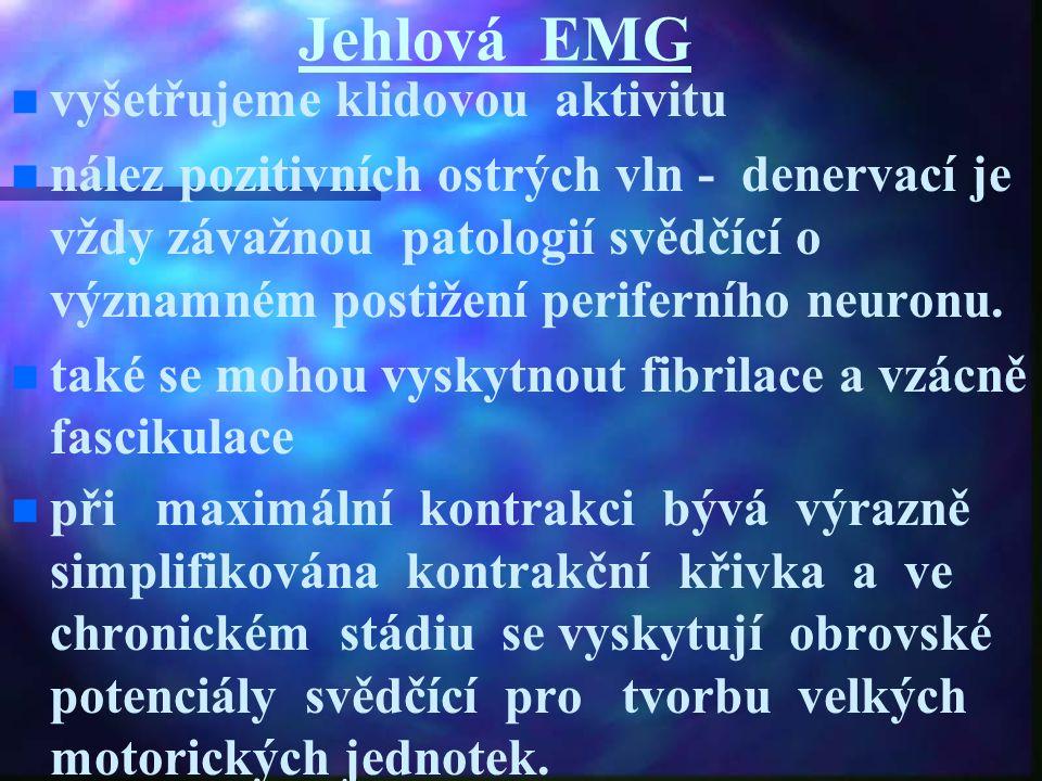 Jehlová EMG vyšetřujeme klidovou aktivitu nález pozitivních ostrých vln - denervací je vždy závažnou patologií svědčící o významném postižení perifern