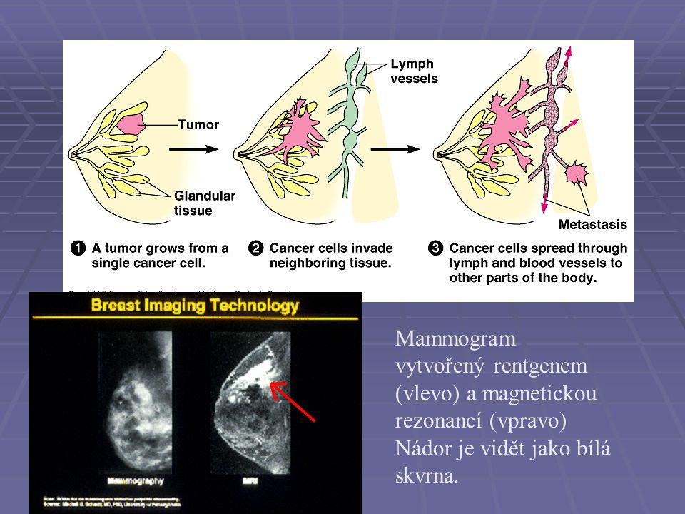 Mammogram vytvořený rentgenem (vlevo) a magnetickou rezonancí (vpravo) Nádor je vidět jako bílá skvrna.