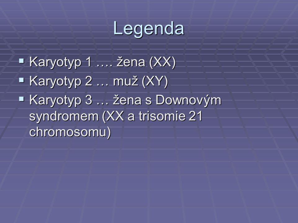 Legenda  Karyotyp 1 …. žena (XX)  Karyotyp 2 … muž (XY)  Karyotyp 3 … žena s Downovým syndromem (XX a trisomie 21 chromosomu)