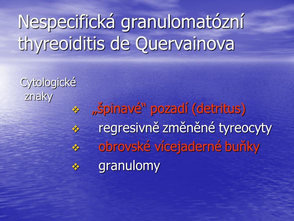 """Nespecifická granulomatózní thyreoiditis de Quervainova Cytologické znaky Cytologické znaky  """"špinavé"""" pozadí (detritus)  regresivně změněné tyreocy"""