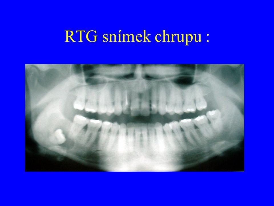 Typy zubů: I - řezák (dens incisivi) C - špičák (dens canini) P- třenový zub (dens premolares) M - stolička (dens molares) Zubní kříž : Trvalý chrup I