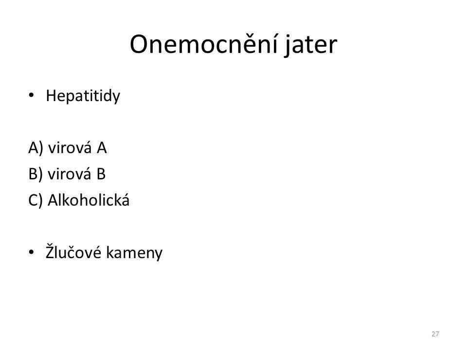 Onemocnění jater Hepatitidy A) virová A B) virová B C) Alkoholická Žlučové kameny 27
