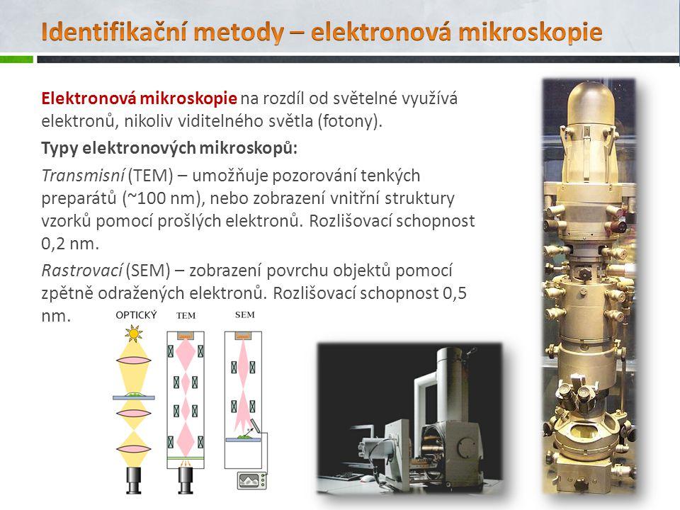 Elektronová mikroskopie na rozdíl od světelné využívá elektronů, nikoliv viditelného světla (fotony). Typy elektronových mikroskopů: Transmisní (TEM)