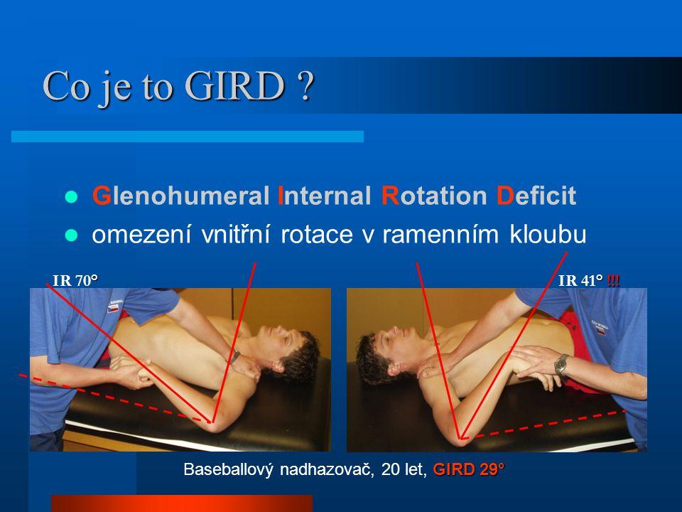 Co je to GIRD ? Glenohumeral Internal Rotation Deficit omezení vnitřní rotace v ramenním kloubu GIRD 29° Baseballový nadhazovač, 20 let, GIRD 29° ° IR