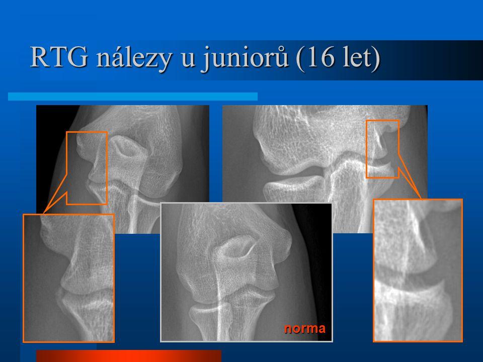 RTG nálezy u juniorů (16 let) norma norma